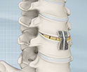 Anterior Cervical Discectomy with Fusion