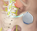 Intrathecal Morphine Pain Pump Implant
